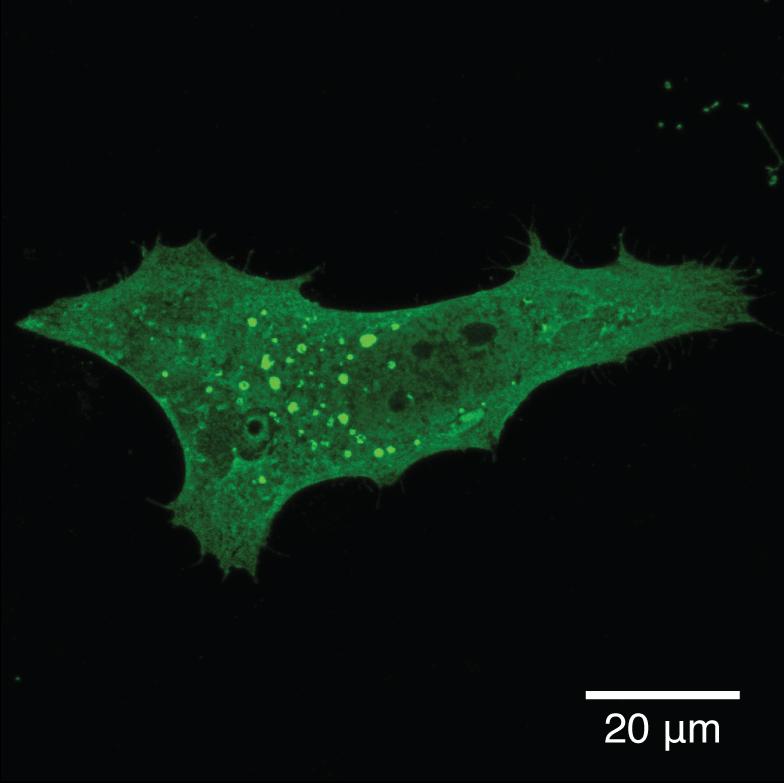Microscopia de fluorescência de células derivadas do tecido cerebral com agregados tóxicos da proteína alfa-sinucleína